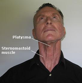 Muscles, front of neck