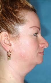 Under-chin problem