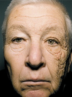 Sun damage to one side of the face