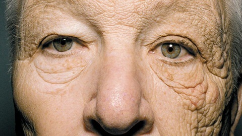 Sun Damage of truck driver's face